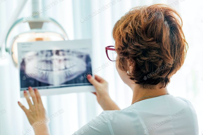 A dentist examines orthopantomogram in her hands