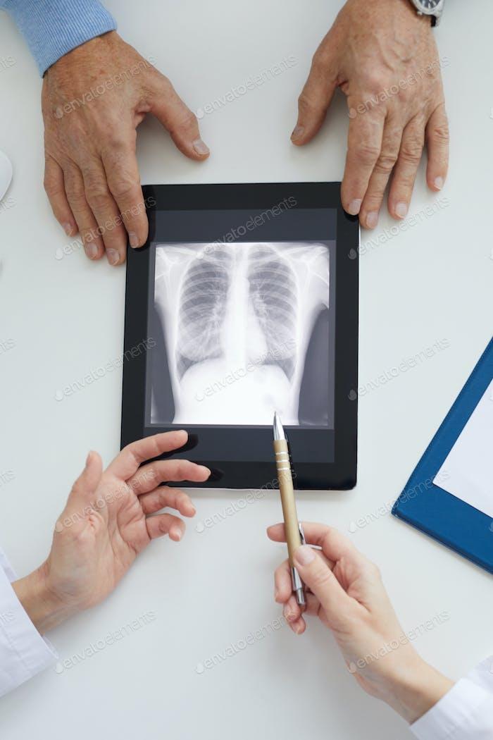 Arzt erklärt Lunge Röntgenaufnahme Nahaufnahme
