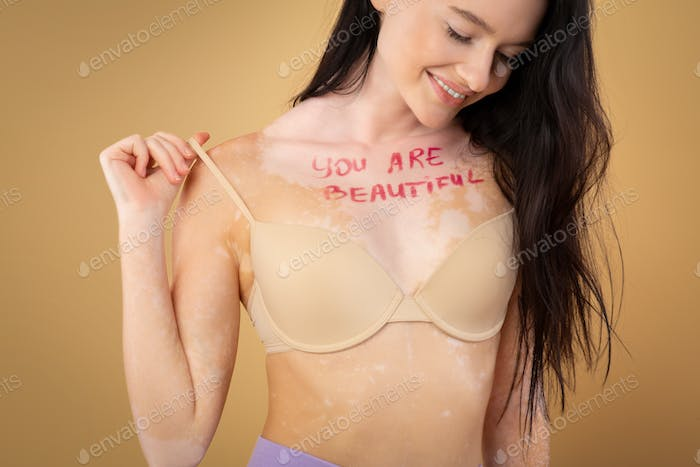 Self-Acceptance. Proud Woman With Vitiligo Having You Are Beautiful Inscription On Chest