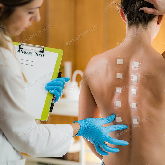 Doctor Doing Skin Allergy Test