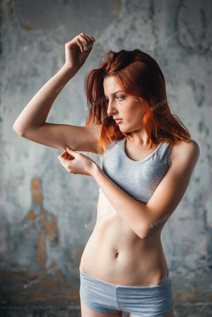 Mujer ma anoréxica, enfermedad Medicina