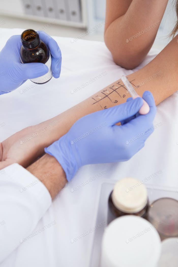 Doctor carrying out a skin prick test on a patient