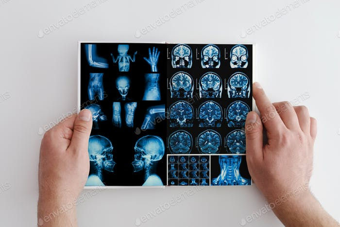 Hands hold MRI scan of head, neck and brain of patient, holding in hands.