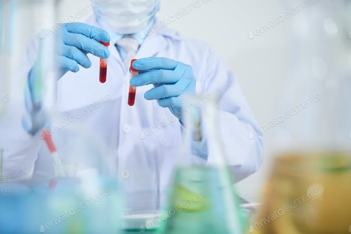 Technician with blood analysis
