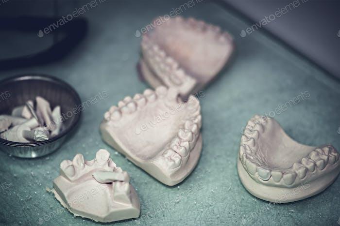 Zahnersatz Prothetik-Labor