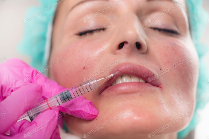 Hyaluronic Acid Fillers for Lips