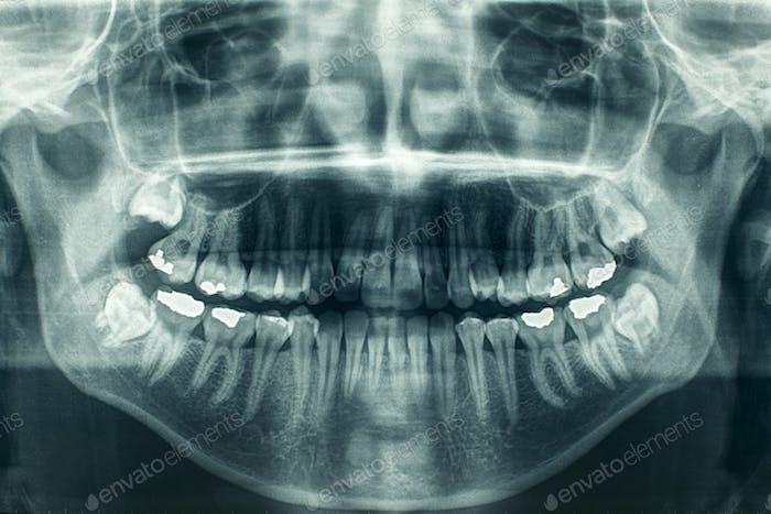 Panorama zahnärztliche Röntgen