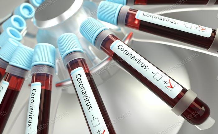 Coronavirus Atemwegsinfektionen Viren Impfstoffe