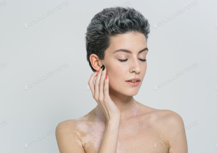 Vitiligo mulher retrato beleza