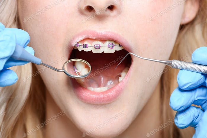 Cropped shot of dentist in latex gloves using a mouth mirror and periodontal probe on woman with