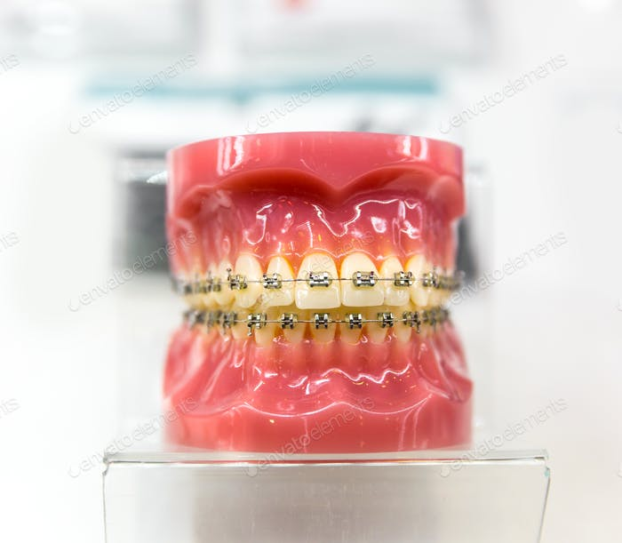 Dental equipment, orthodontic, denture closeup