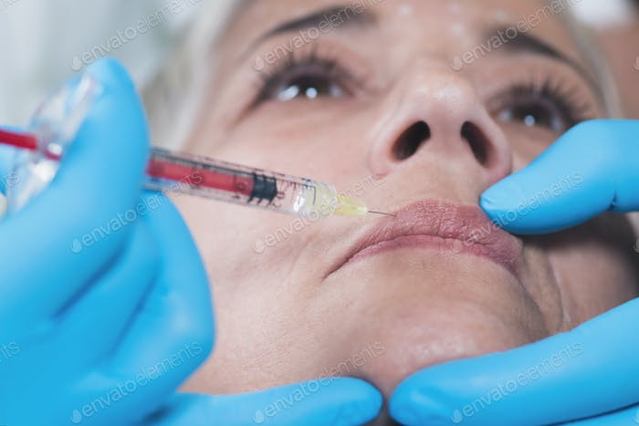 Hyaluronan Injection Face Treatment
