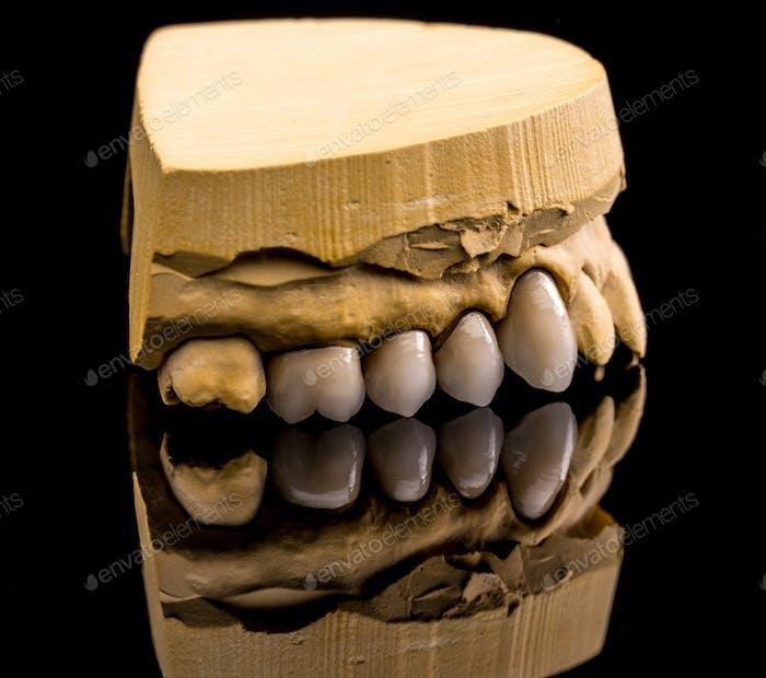 Ceramic dentures