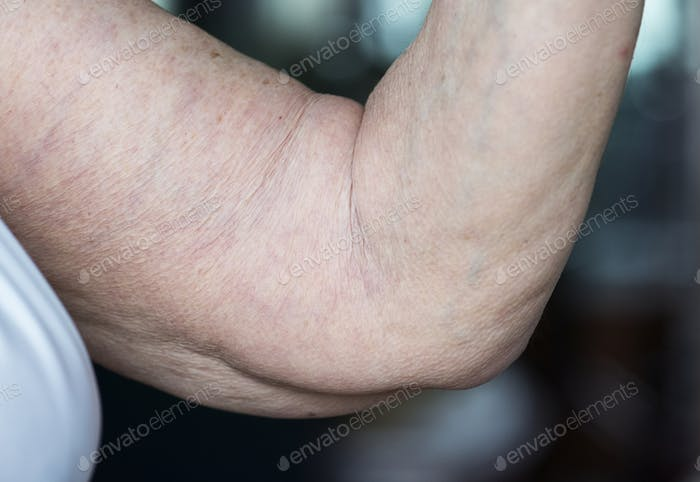 Closeup of loose elderly arm