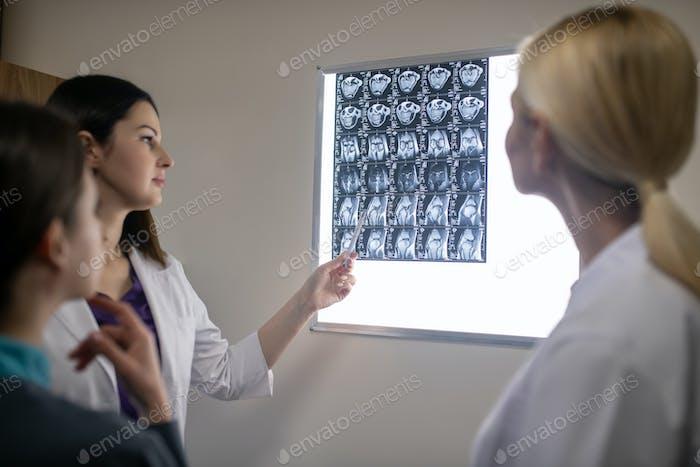 Doctors in neurological clinic discussing mri scan