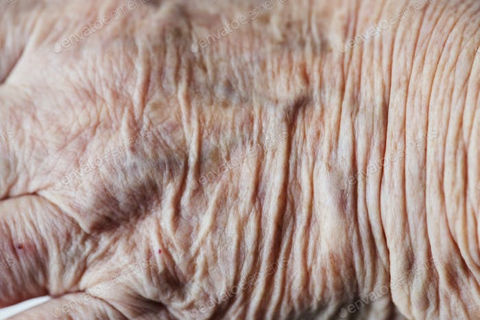 Thumbnail for Closeup of wrinkled hand
