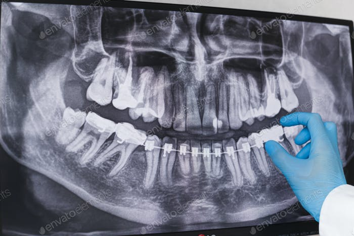 Doctor points to braces in dental x-ray