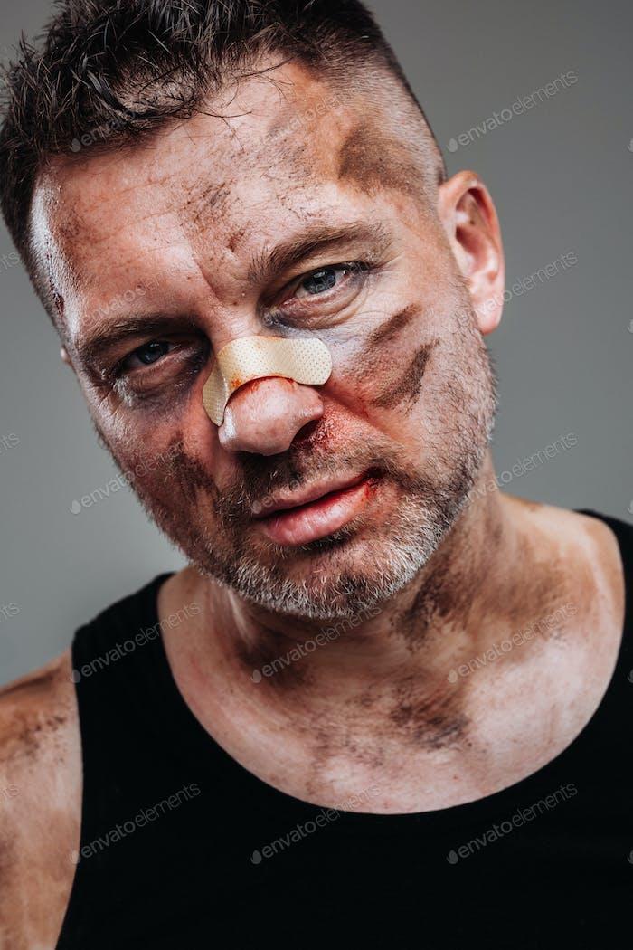 un hombre maltratado en una camiseta negra que parece un drogadicto y un borracho se enfrenta