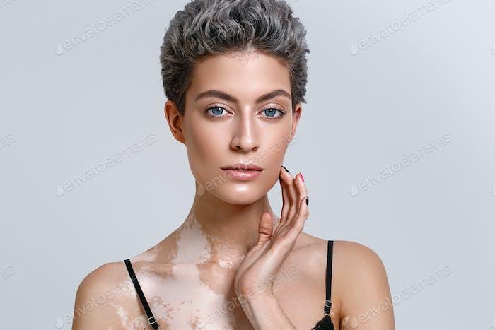 Vitiligo mulher retrato de beleza. Tiro no estúdio. Fundo cinza.