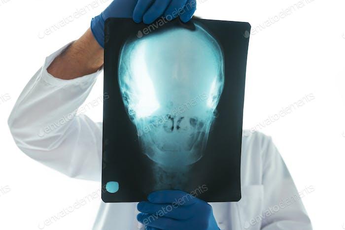 Arzt untersucht Röntgenaufnahme des Schädels