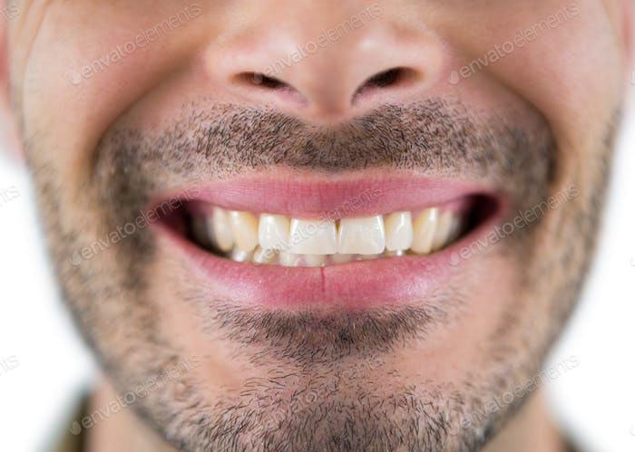 Man showing his teeth