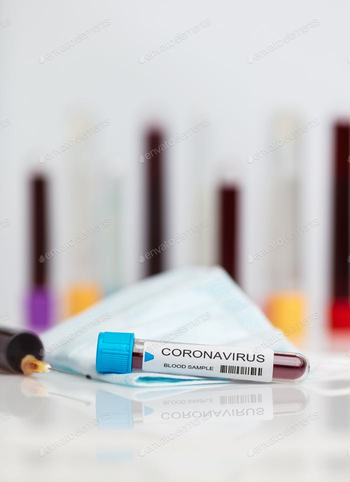 Laboratory sample of the novel Coronavirus