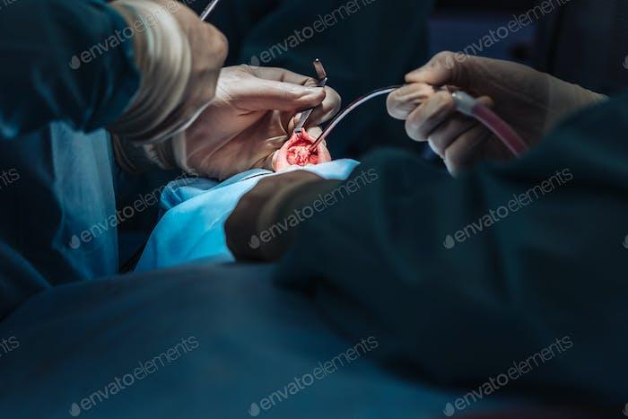 Kosmetische Chirurgie an der Nase. Der Chirurg schneidet das Fleisch