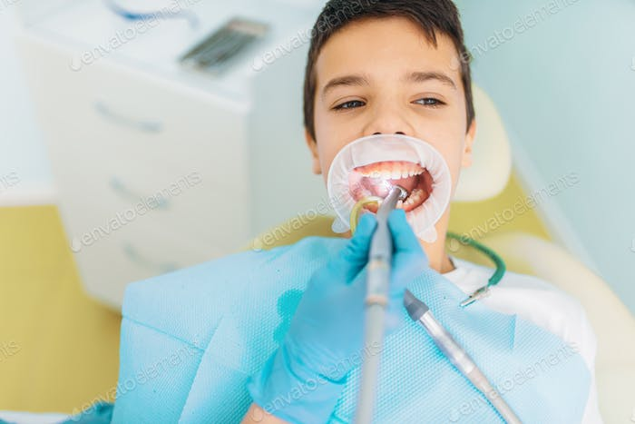 Caries removal procedure, pediatric dentistry