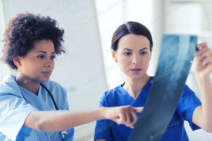 female doctors with x-ray image at hospital