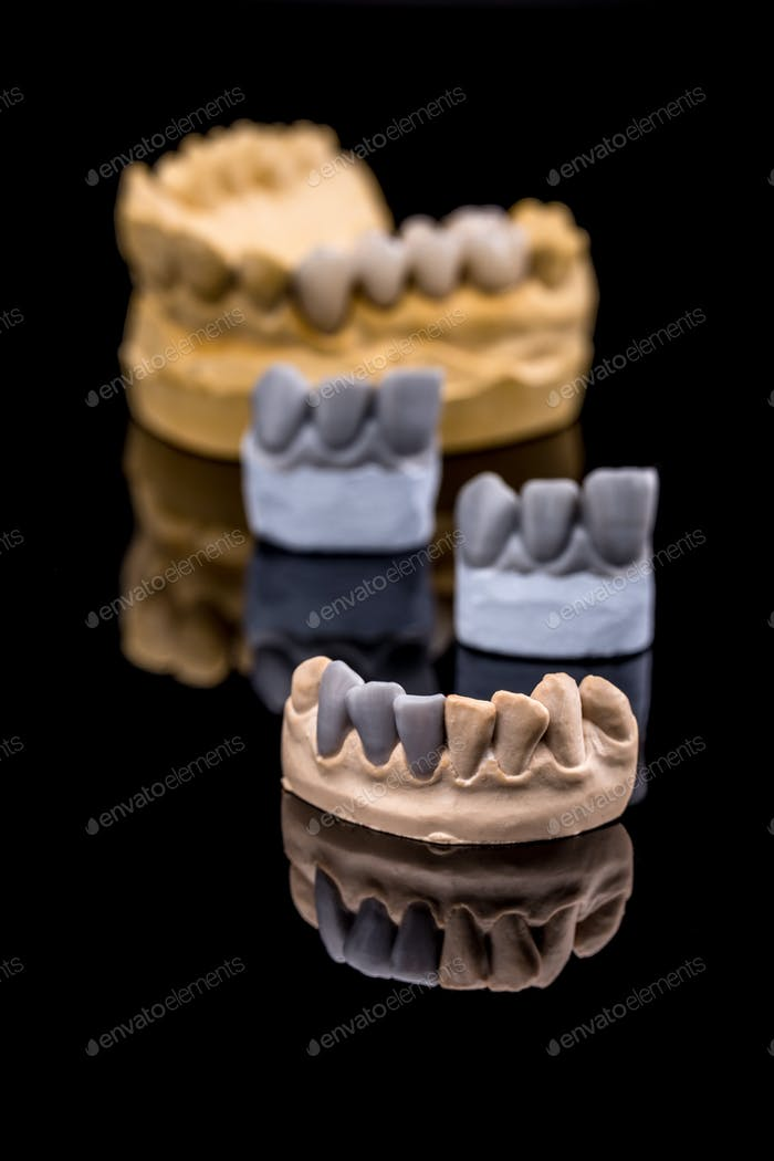 Set of dentures