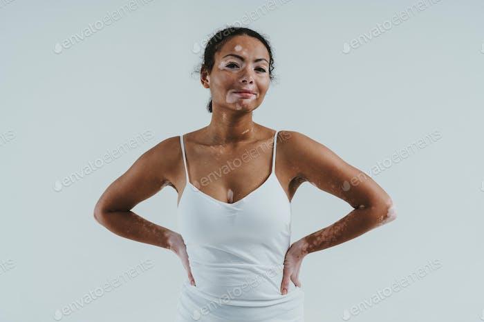 Beautiful woman with vitiligo skin