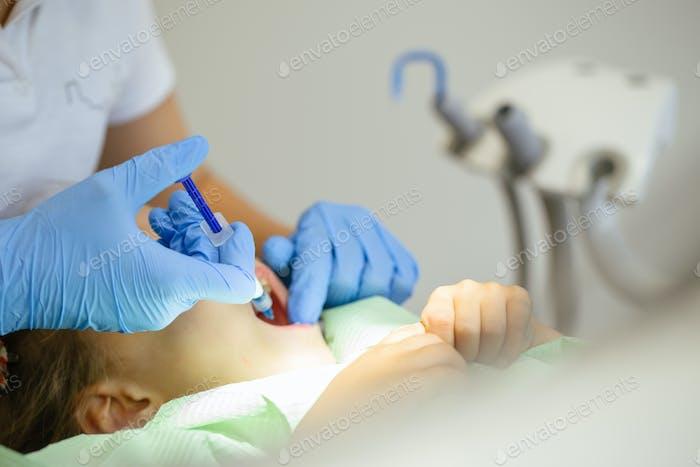Kind zum Zahnarzt. Kind im Zahnstuhl zahnärztliche Behandlung