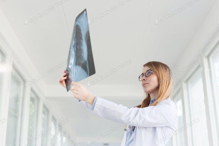 DocMujer joven que mira la imagen de rayos X de los pulmones en el hospital