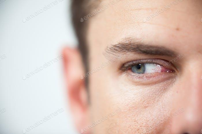 Hombre con lentes de contacto