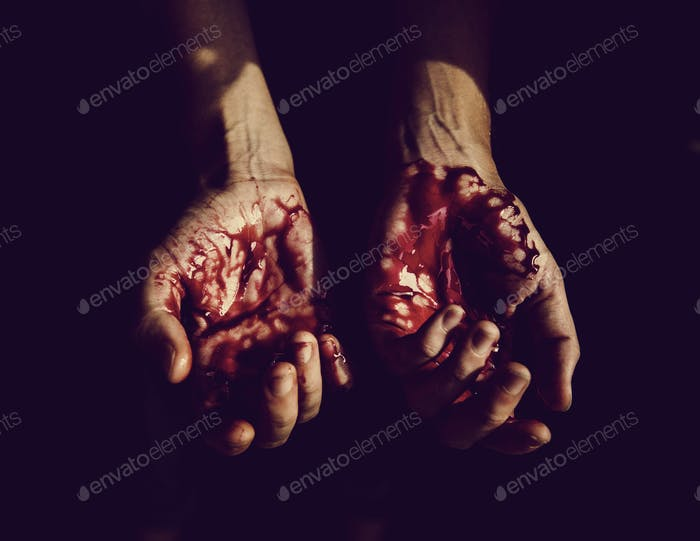 Severely injured bloody hands