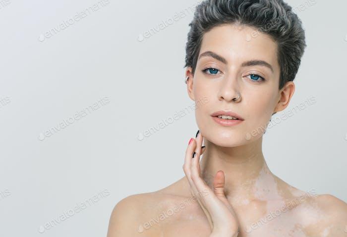 Vitiligo pigment woman skin unusual beauty portrait woman skin beauty portrait