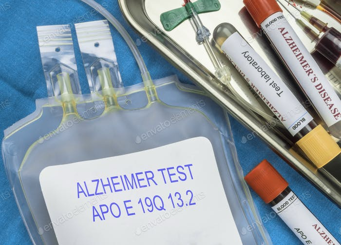 Test of Alzheimer disease through extraction of blood