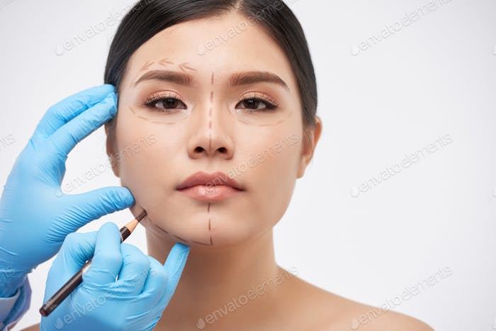 Drawing marks for surgery