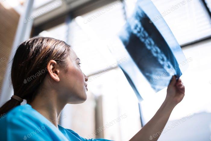 Enfermera examinando el informe de rayos X