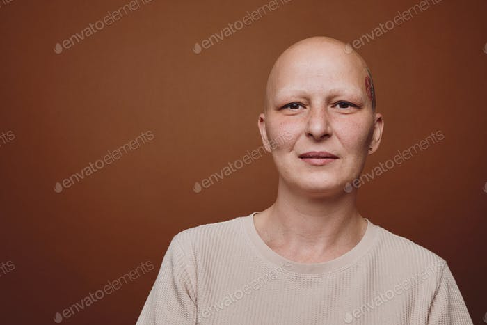 Studio Portrait of Smiling Bald Woman