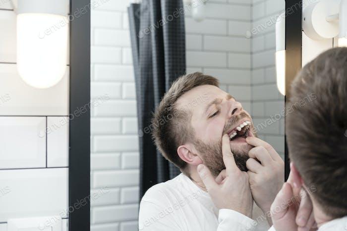 Aufgeregt jungen kaukasischen Mann öffnete den Mund und untersucht die Abwesenheit eines Zahnes, Blick in den Spiegel.