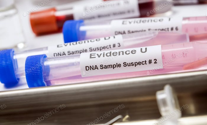 Hematological analysis with forensic test kit in a murder in a crime lab, conceptual image