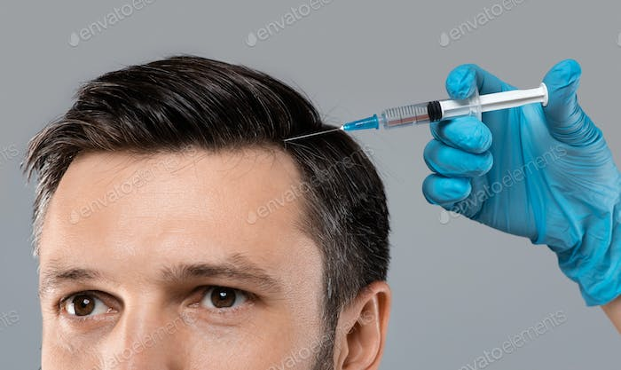 Mesotherapy for hair. Young man getting injections in head