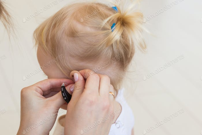 Hearing aid in baby girl's ear. Toddler child wearing a hearing aid at home. Disabled child