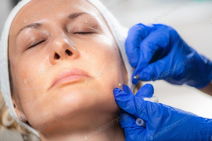 Aesthetic Medicine Facial Contouring with 3D Meso Threads.