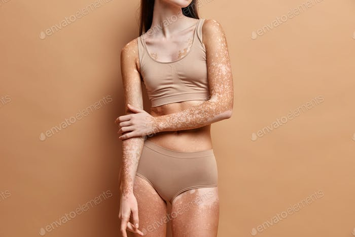 Unrecognizable slim woman with vitiligo skin wears beige lingerie poses against brown background. Pi