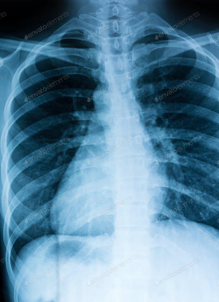 Röntgenuntersuchung in der Brust
