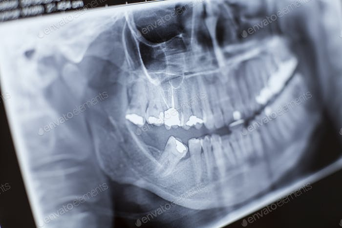 X-ray Close-up
