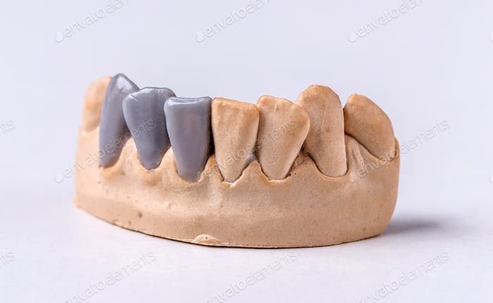 Wax dental prosthesis