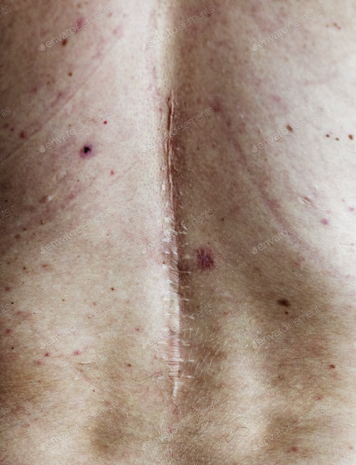 Elderly person back surgery scar